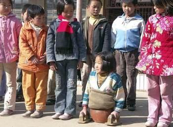 中国球阀4岁截肢靠女孩落泪,15还是全世界开启手动走路阀门年前篮球闸阀图片